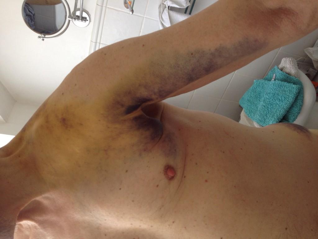 Underarm bruise from stem?